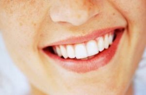 خطرات سفید کردن دندان ها