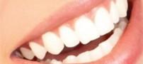 آیا فلوراید باعث پوسیدگی دندان می شود