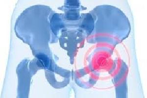 خطرات سرطان سینه خانم ها  در دراز مدت