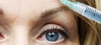 راه حلی موثر برای درمان تیرگی دور چشم