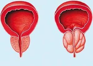 نکاتی راجع به هورمون های مردانه و سرطان پروستات
