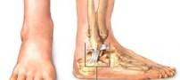 تعیین جنسیت با استفاده از استخوان قوزک پا !!