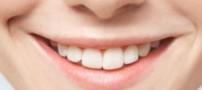 کسانی که دندان های سفید می خواهند