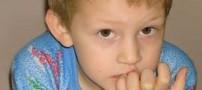علت ها و راه حل ناخن جویدن کودک