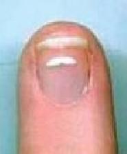 علت سفیدی روی ناخن چیست