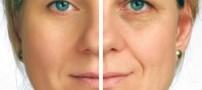 آیا کرم های ضد چروک موثر هستند یا نه