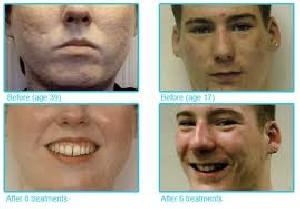 معرفی بهترین مواد طبی برای از بین بردن لکه صورت