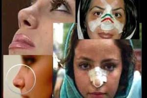 آماری تکان دهنده از هزینه ایرانیها برای دماغ!