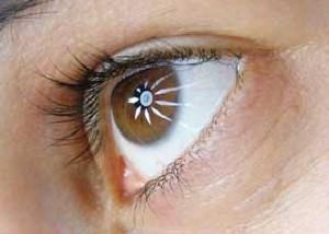 نکات مهم در مورد نزدیک بینی