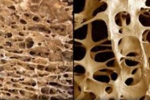 3 خوارکی بسیار مفید برای پوکی استخوان