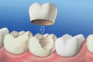 آیا روکش دندان خوب است یا نه