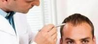 کاشت موی طبیعی چگونه است