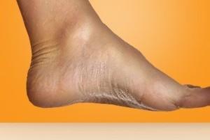 راه کار بسیار ساده برای زق زق کردن و درد کف پا