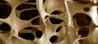 توصیه هایی برای تقویت استخوان ها