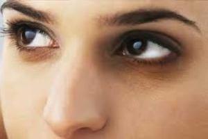 دلایل سیاهی دور چشم چیست