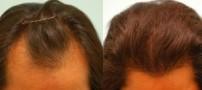آیا کاشت مو برای خانم ها هم ممکن است