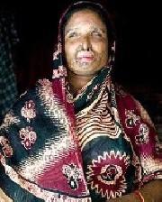 مردی پس از جدایی، همسرش را با اسید سوزاند (عکس)