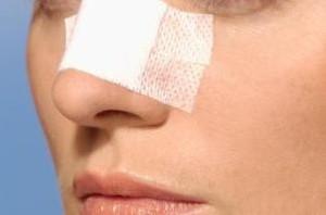 تمام آنچه باید در مورد جراحی بینی بدانید