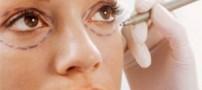با این روش آرایش سیاهی زیر چشمتان را محو کنید