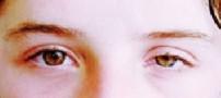 تنبلی چشم یا آمبلیوپی چیست