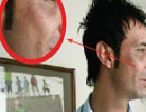 انواع جراحی های زیبایی در بازیکنان مشهور فوتبال ایران