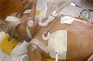 مرگ تلخ این کودک 5 ساله زیر شلاق های مرگبار ناپدری