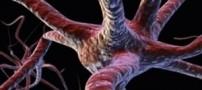 بیماری های نادر و عجیب غریب دنیا
