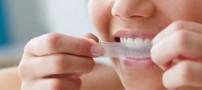 راه های رفع زردی دندان ها
