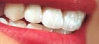 رازهای مهم و جالب در مورد دندان