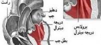 علایم بیماری افتادگی دریچه میترال