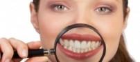 این گونه دندان هایی سفید و براق داشته باشید