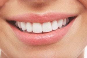 جدیدترین روش سفید کردن دندان