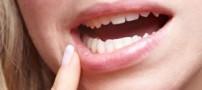 علت آفت دهان و راه های درمان آن