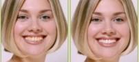 علت زردی دندان ها و راه درمان آن