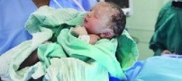 تصویری از تولد کم وزن ترین نوزاد ایران