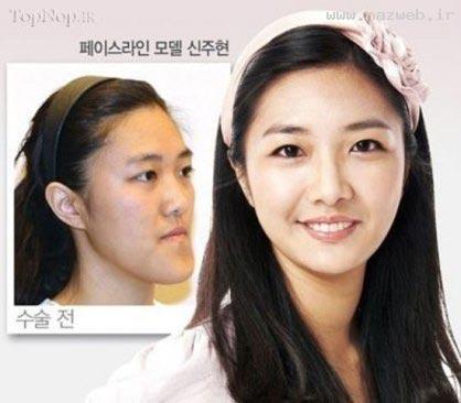 عمل زیبایی تغییر چهره