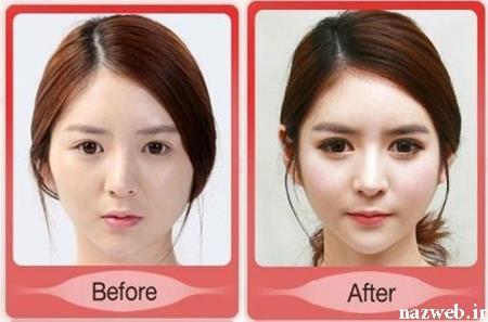 عمل زیبایی قبل و بعد